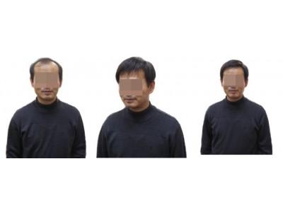 남자시술사진삼원1.jpg
